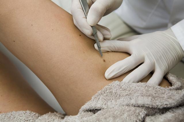 Aprueban  fármaco contra el carcinoma de la piel