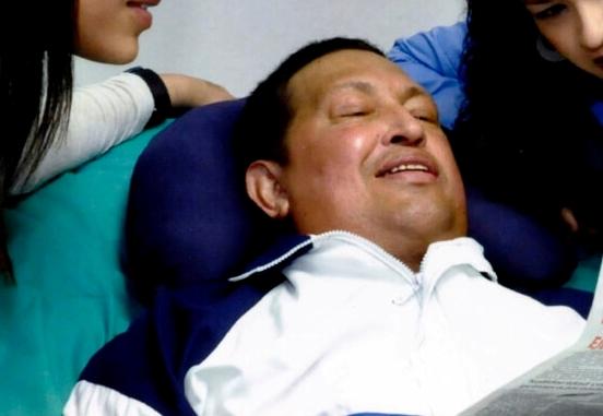 Hugo Chávez no mejora de insuficiencia respiratoria