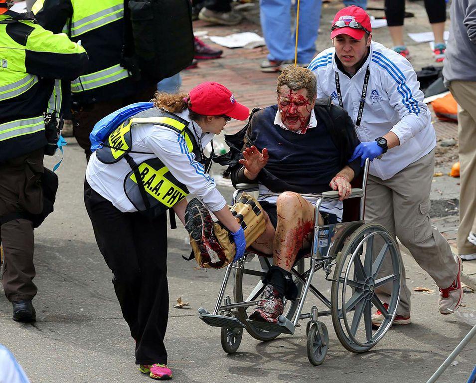 Decenas pierden extremidades por bombazos en Boston (fotos)