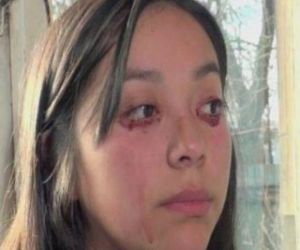 Conmoción en Chile por caso de joven que llora sangre (video)