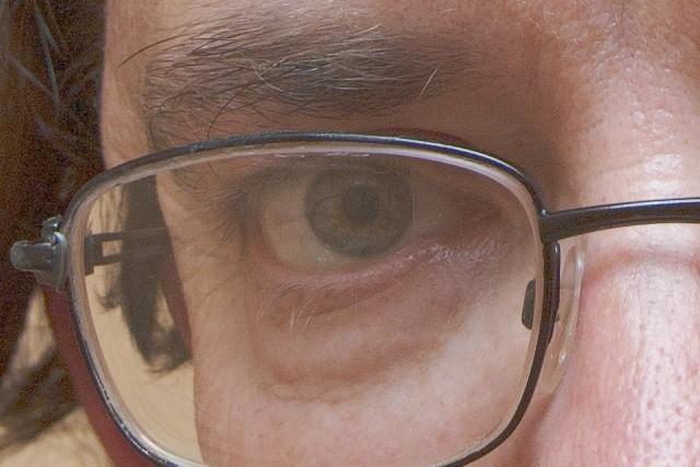Glaucoma, si se detecta a tiempo se conserva la visión