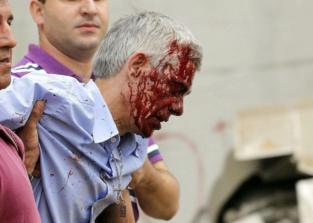 El maquinista recibe auxilio en un hospital por las heridas sufridas en el accidente.