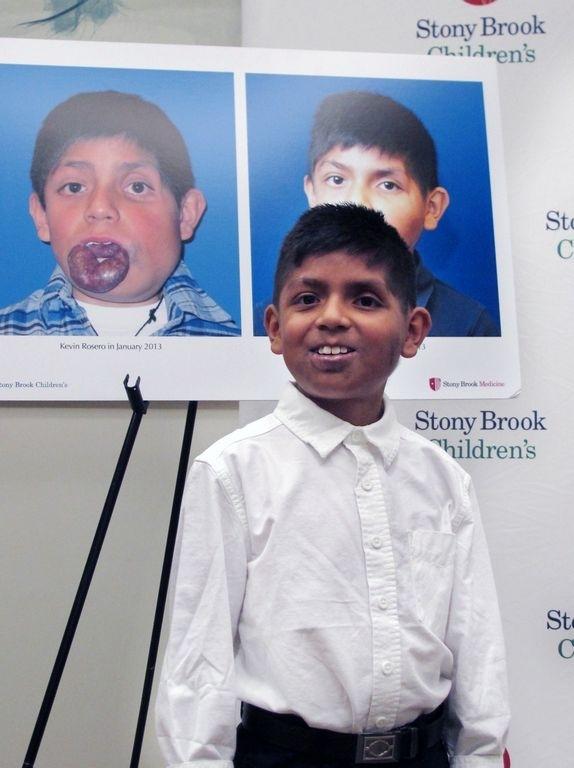 Pequeño Kevin regresa a Ecuador tras obtener sonrisa en NY