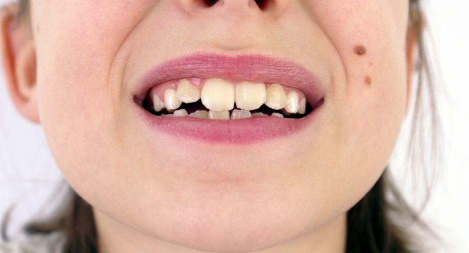 Niños sufren burlas si tienen dientes torcidos