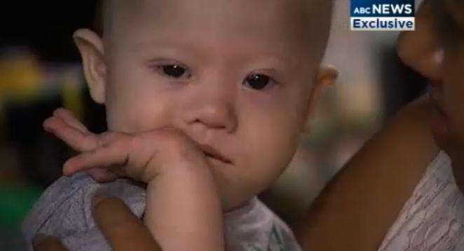Pareja australiana rechaza hijo con síndrome de Down (video)