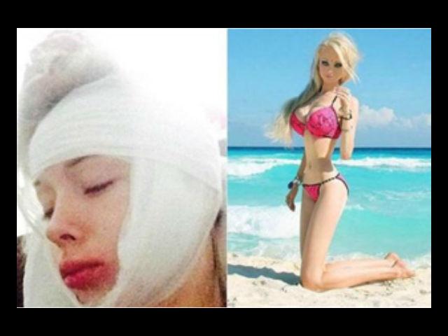Agreden a golpes a la 'Barbie humana'