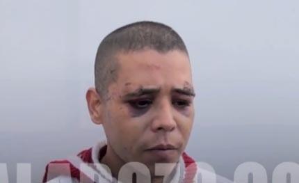 Le dispara a su amigo, le corta el miembro y se lo lanza a perro (video)