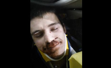 Fracturado y malherido joven graba su rescate tras accidente de tránsito (video)