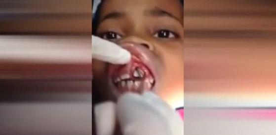 El asqueroso hallazgo en las encías de esta niña escapa a tu imaginación… (video)