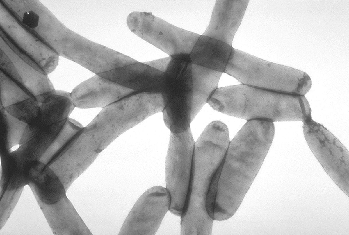 Policía demanda $11 millones a la ciudad por haber contraído enfermedad del Legionario