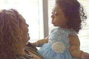 Janelly, la niña que nació sin huesos y los desarrolló con terapia