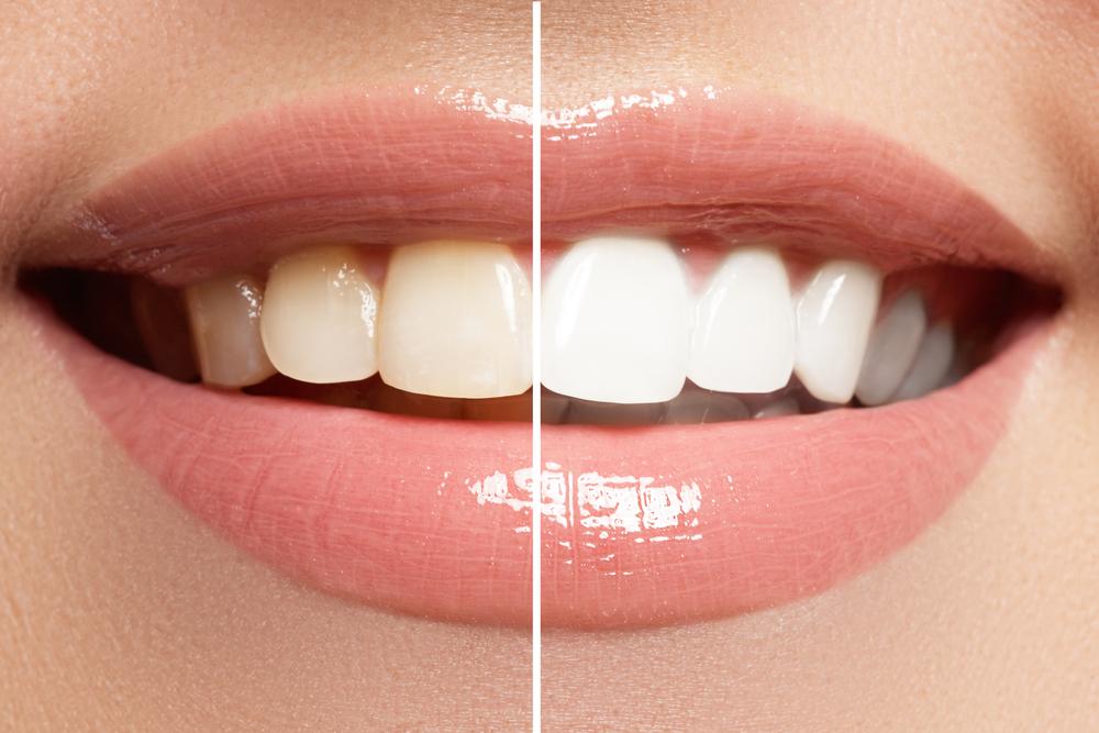 Los riesgos de blanquearse los dientes en casa o el salón de belleza
