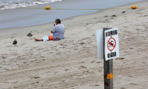 """Hombre se infecta con bacteria """"come carne"""" en Florida sin meterse al agua"""