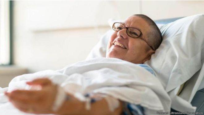 Aplican quimioterapia directamente al cerebro de una paciente