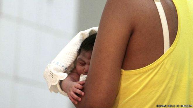 Bebés con microcefalia son ya una epidemia sin precedentes