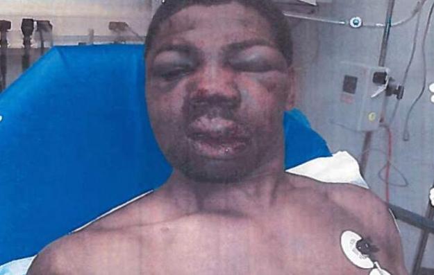 Matan en Brooklyn a ex prisionero que recibió paliza en Rikers Island