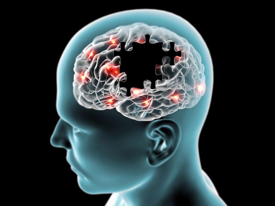 Hongos en el cerebro podrían ser la causa del Alzheimer
