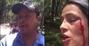 América Gabriel habló sobre la agresión de la que fue víctima (video)