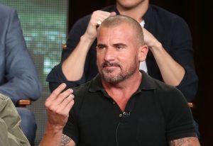 Fotos: Actor de 'Prison Break' sufrió un aparatoso accidente en la cara