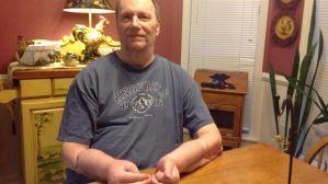 Recibió un doble transplante de manos y ahora no las quiere