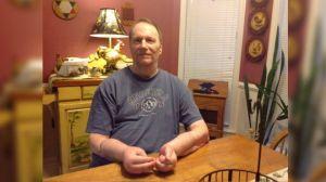La pesadilla que vive el hombre que recibió el primer trasplante de manos en EEUU