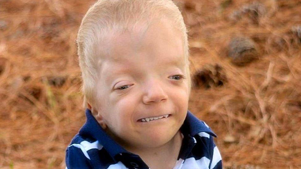 Grayson Smith, de tres años.