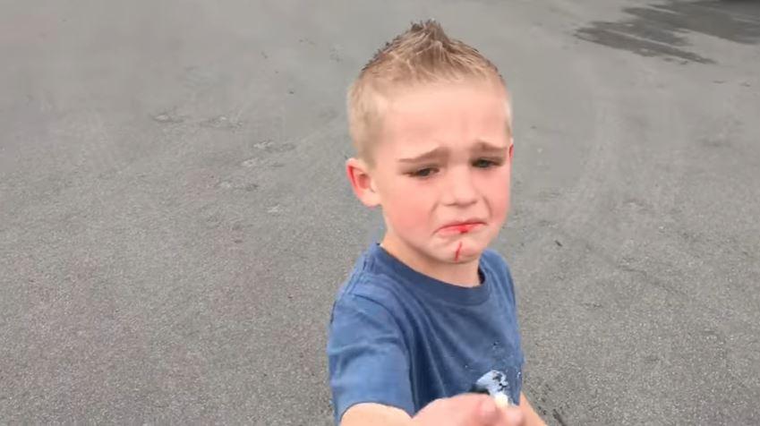 Video: Este hombre usó su auto para quitarle un diente flojo a su hijo