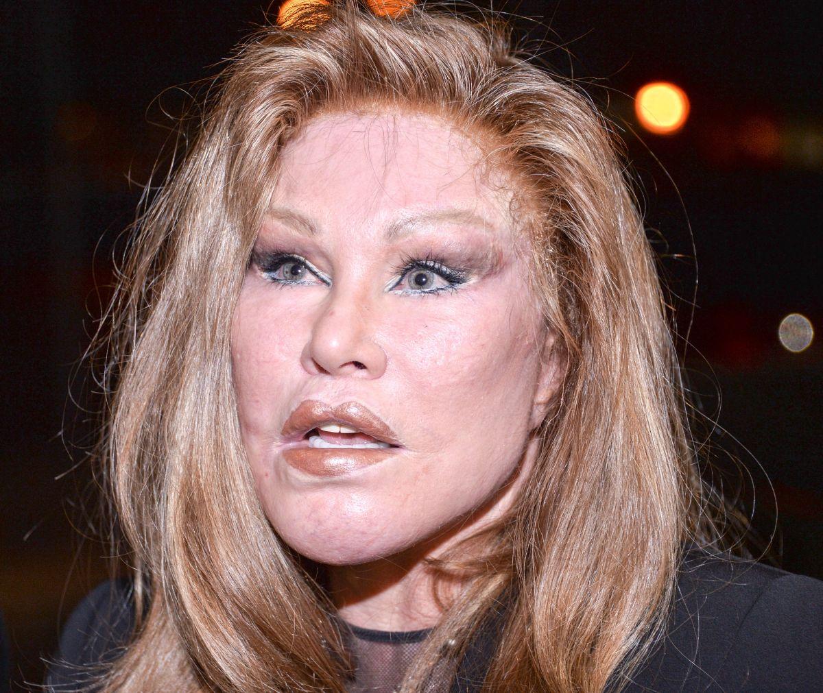 Jocelyne Wildenstein se ha realizado varias cirugías estéticas.