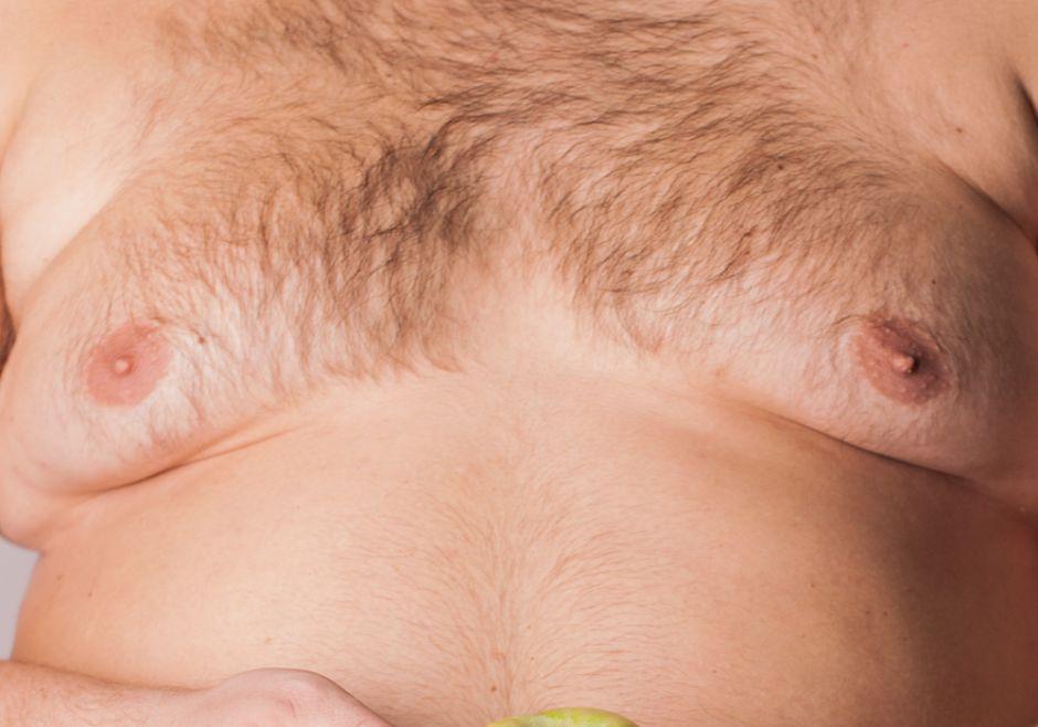 Un medicamento hizo crecer los senos a miles de hombres; demandarán a Johnson & Johnson