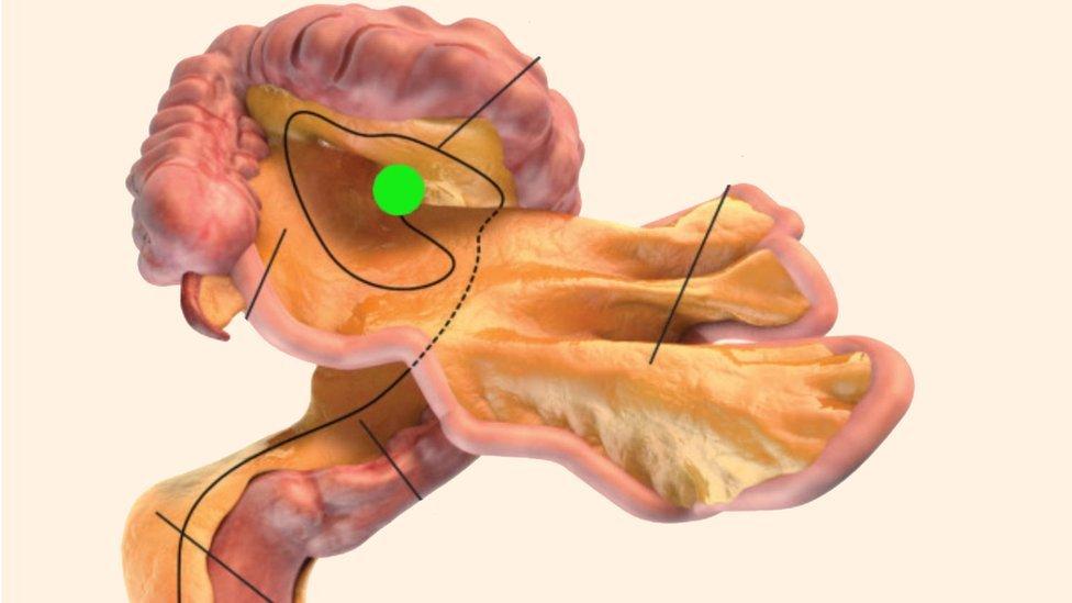 Conoce el nuevo órgano del cuerpo descubierto por la ciencia y para qué sirve