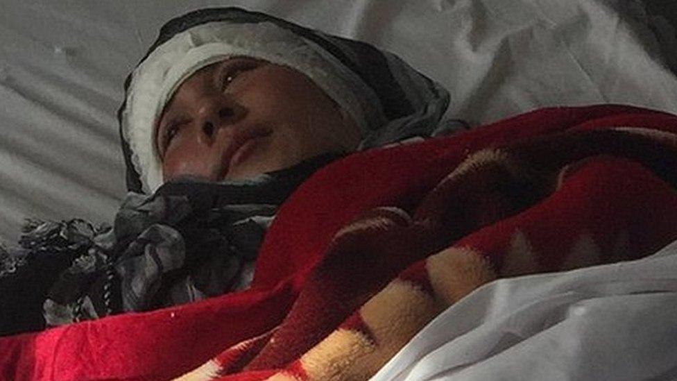 Su esposo la mutiló cruelmente sin aparente razón