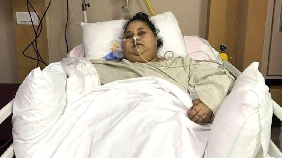 La mujer más obesa del mundo pasó de 1,100 a 880 libras luego de una cirugía bariátrica