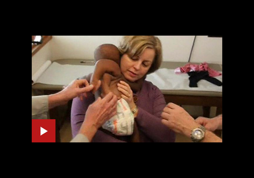 Video: La cirugía que extirpó un gemelo parasitario de la espalda de esta bebé