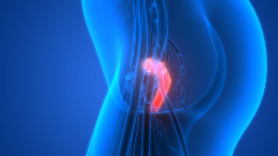 Las variantes genéticas que aumentan el riesgo de sufrir cáncer de ovario