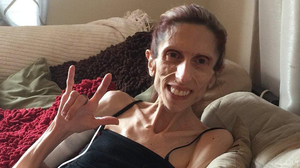 Sufre anorexia, pesa apenas 44 libras, pero no pierde la esperanza de sobrevivir