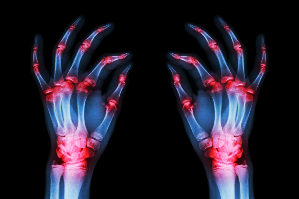 Qué probar y qué ni siquiera tratar para la artritis