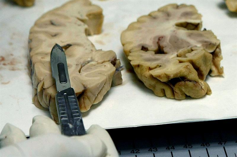 Pacientes con desorden bipolar tienen menos materia gris