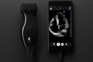 Dispositivo en un iPhone ayuda a un médico a diagnosticarse cáncer