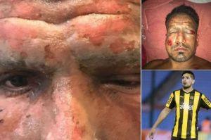 Futbolistas sufren graves quemaduras con pirotecnia; uno es mexicano