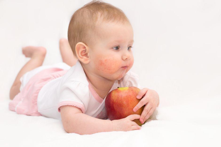 Cómo prevenir y tratar la dermatitis atópica en los niños