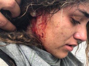 Llenan las redes sociales con imágenes de heridos en el Paro Nacional en Puerto Rico