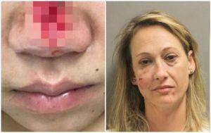 Perdió parte de su nariz por mordida durante una pelea