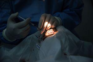 Cirugía de cataratas: 6 cosas que debes saber y quizá el doctor no te ha dicho