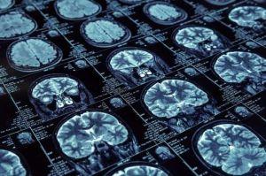 ¿Milagro? El tumor cerebral de un sacerdote desapareció justo antes de su cirugía