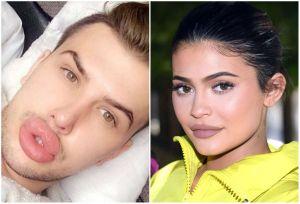 El chico que ha gastado más de $19,000 para parecerse a Kylie Jenner