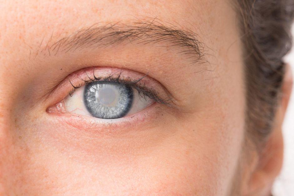 Las 3 enfermedades de los ojos que predicen el Alzheimer
