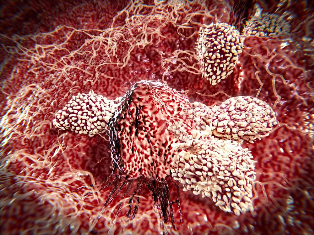 Una célula cancerosa es atacada por un tratamiento.