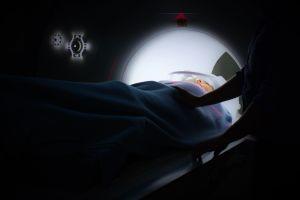 ¡Sorprendente! El asesino más poderoso del cáncer está dentro del cuerpo mismo