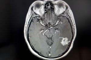 Entre más grande sea el cerebro, mayor el riesgo de sufrir cáncer