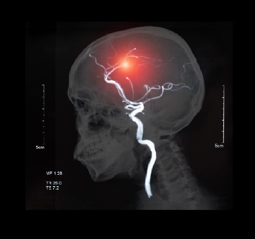 Un derrame cerebral puede tener serias consecuencias.